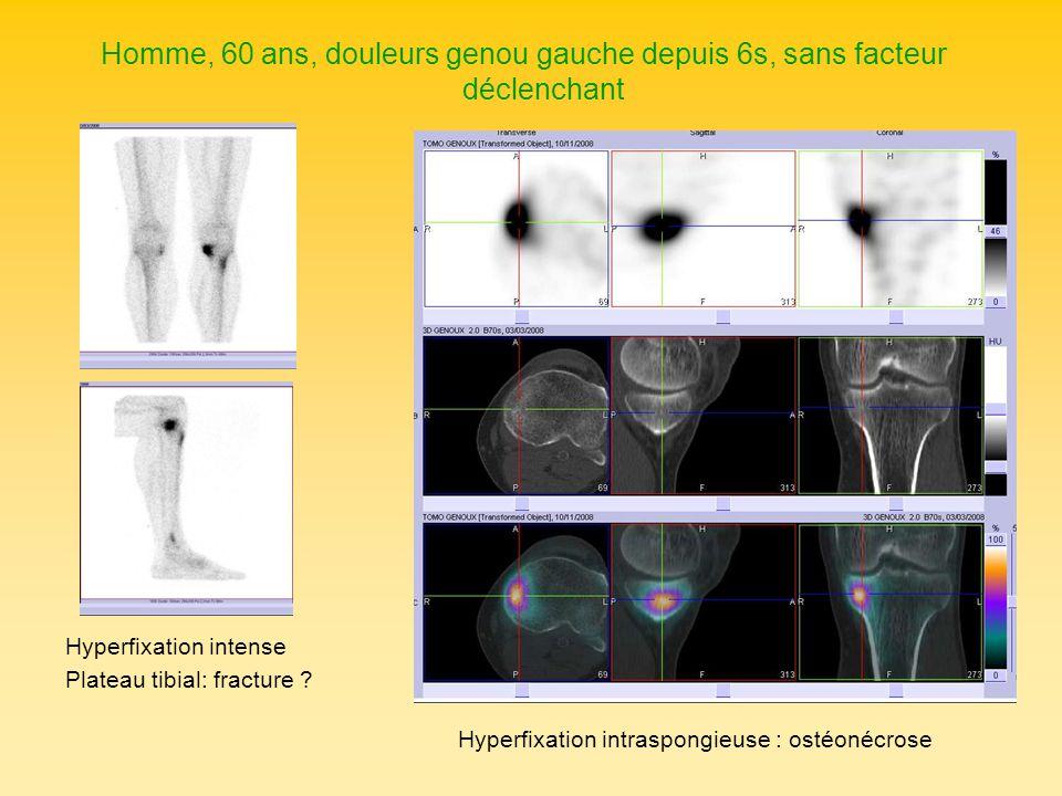 Homme, 60 ans, douleurs genou gauche depuis 6s, sans facteur déclenchant Hyperfixation intense Plateau tibial: fracture ? Hyperfixation intraspongieus