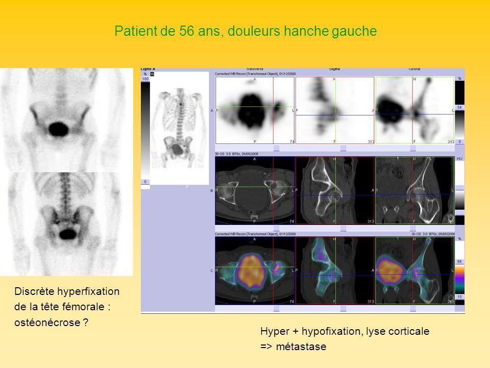 Patient de 56 ans, douleurs hanche gauche Discrète hyperfixation de la tête fémorale : ostéonécrose ? Hyper + hypofixation, lyse corticale => métastas