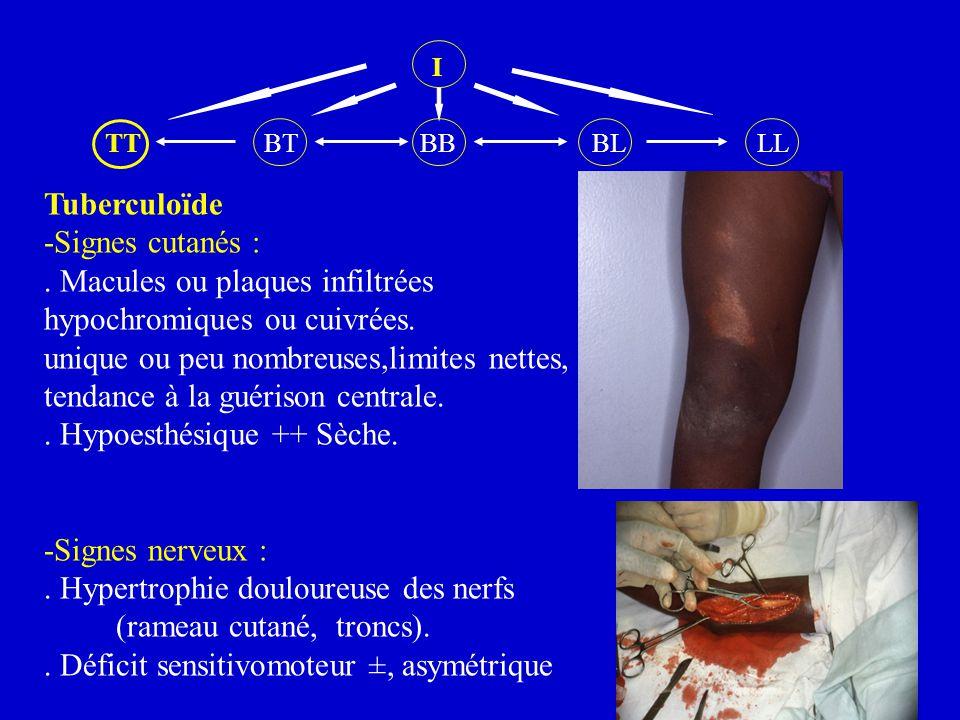 I TT BT BB BL LL Tuberculoïde -Signes cutanés :. Macules ou plaques infiltrées hypochromiques ou cuivrées. unique ou peu nombreuses,limites nettes, te