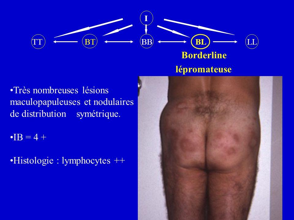 I TT BT BB BL LL Borderline lépromateuse Très nombreuses lésions maculopapuleuses et nodulaires de distribution symétrique. IB = 4 + Histologie : lymp