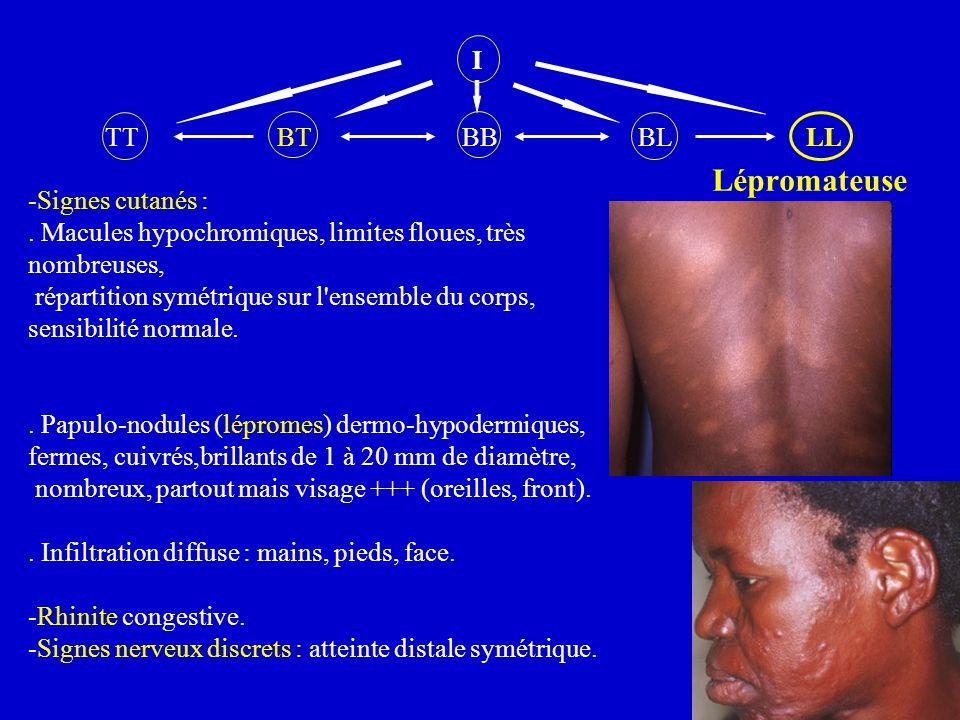 I TT BT BB BL LL Lépromateuse -Signes cutanés :. Macules hypochromiques, limites floues, très nombreuses, répartition symétrique sur l'ensemble du cor