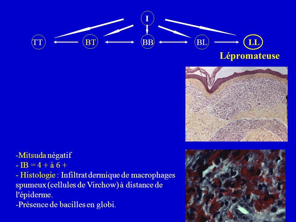 I TT BT BB BL LL Lépromateuse -Mitsuda négatif - IB = 4 + à 6 + - Histologie : Infiltrat dermique de macrophages spumeux (cellules de Virchow) à dista
