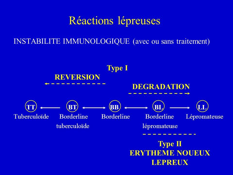 Réactions lépreuses INSTABILITE IMMUNOLOGIQUE (avec ou sans traitement) TT BT BB BL LL Tuberculoïde Borderline Borderline Borderline Lépromateuse tube