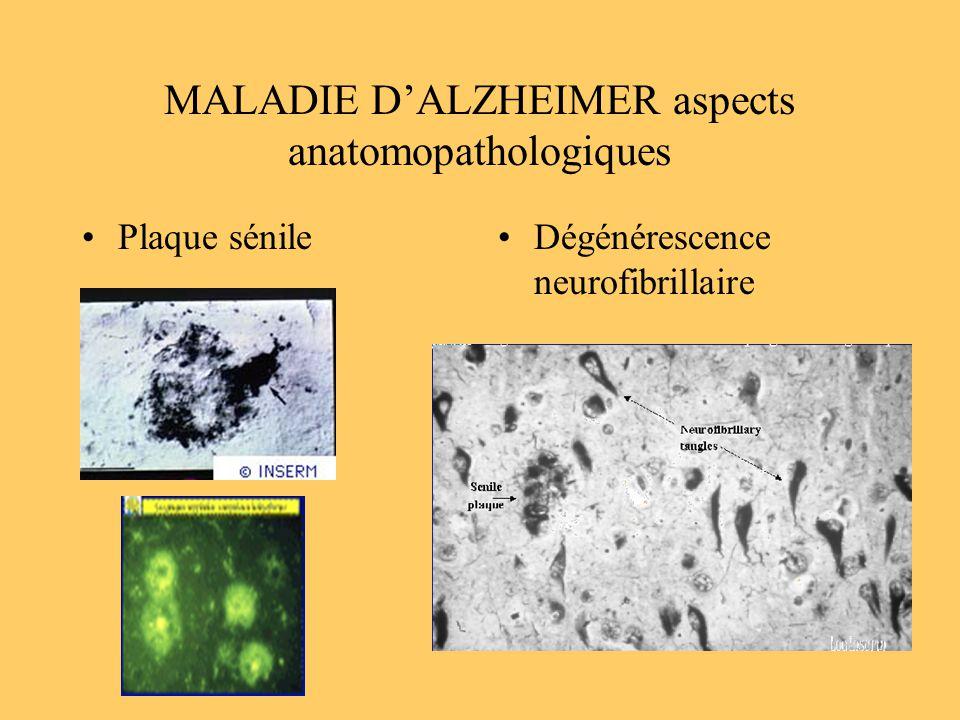 MALADIE DALZHEIMER aspects anatomopathologiques Plaque sénileDégénérescence neurofibrillaire