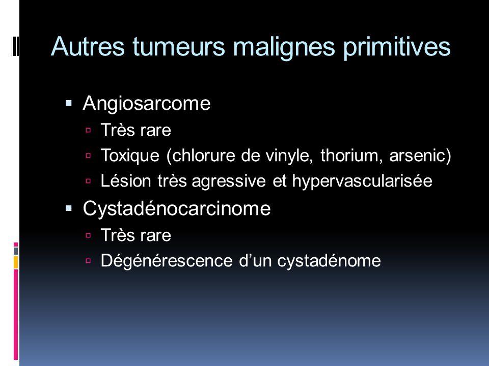 Autres tumeurs malignes primitives Angiosarcome Très rare Toxique (chlorure de vinyle, thorium, arsenic) Lésion très agressive et hypervascularisée Cy