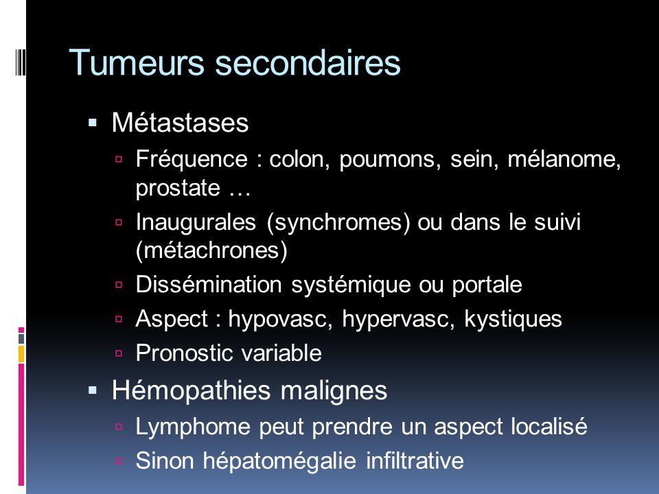 Tumeurs secondaires Métastases Fréquence : colon, poumons, sein, mélanome, prostate … Inaugurales (synchromes) ou dans le suivi (métachrones) Dissémin