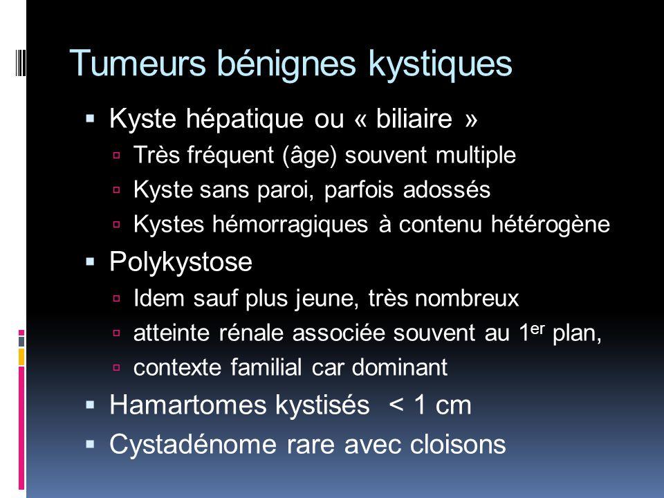 Tumeurs bénignes kystiques Kyste hépatique ou « biliaire » Très fréquent (âge) souvent multiple Kyste sans paroi, parfois adossés Kystes hémorragiques