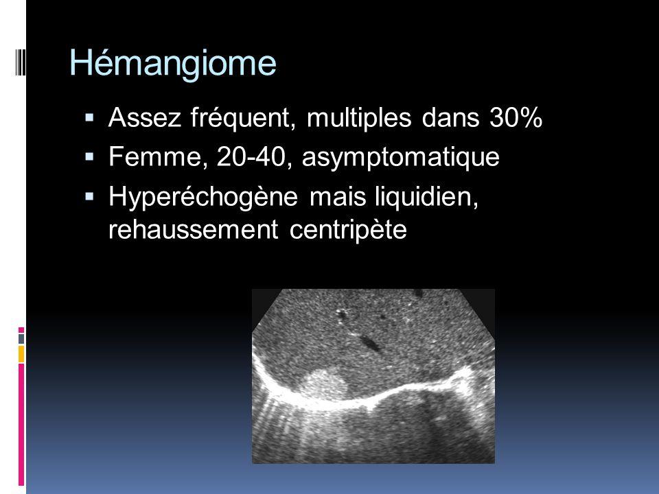 Hémangiome Assez fréquent, multiples dans 30% Femme, 20-40, asymptomatique Hyperéchogène mais liquidien, rehaussement centripète