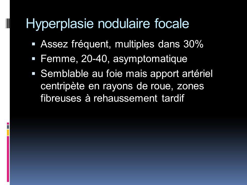 Hyperplasie nodulaire focale Assez fréquent, multiples dans 30% Femme, 20-40, asymptomatique Semblable au foie mais apport artériel centripète en rayo