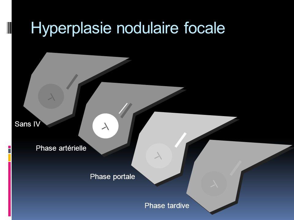 Hyperplasie nodulaire focale Sans IV Phase artérielle Phase portale Phase tardive