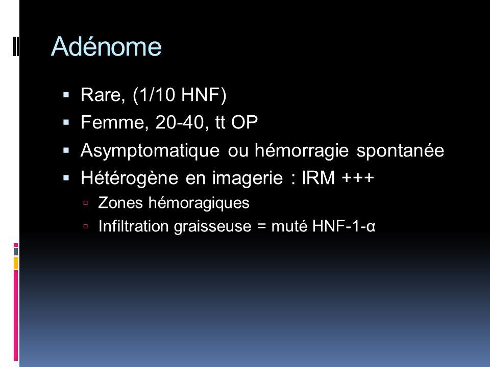 Adénome Rare, (1/10 HNF) Femme, 20-40, tt OP Asymptomatique ou hémorragie spontanée Hétérogène en imagerie : IRM +++ Zones hémoragiques Infiltration g