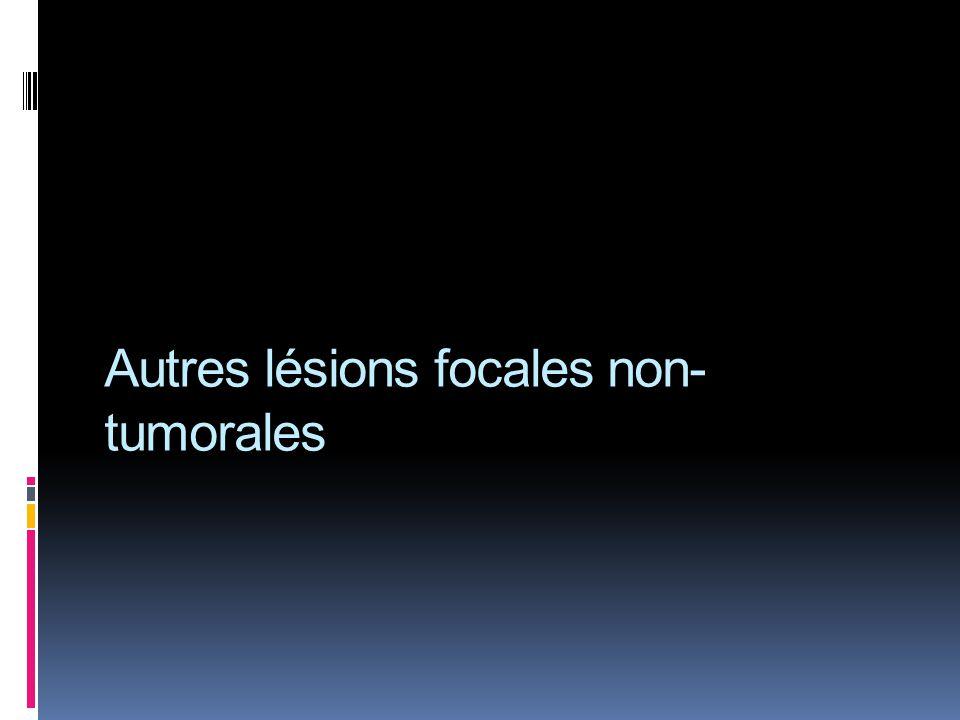 Autres lésions focales non- tumorales