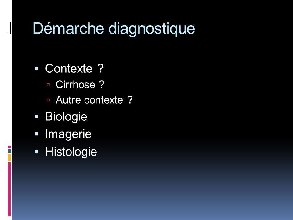 Démarche diagnostique Contexte ? Cirrhose ? Autre contexte ? Biologie Imagerie Histologie