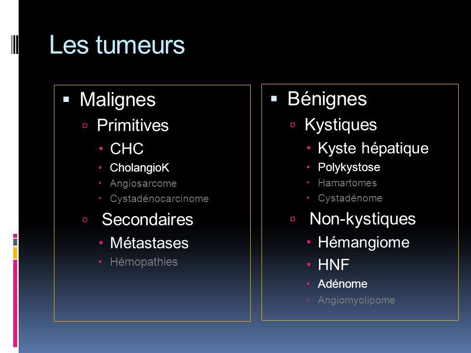 Tumeurs malignes - primitives - secondaires