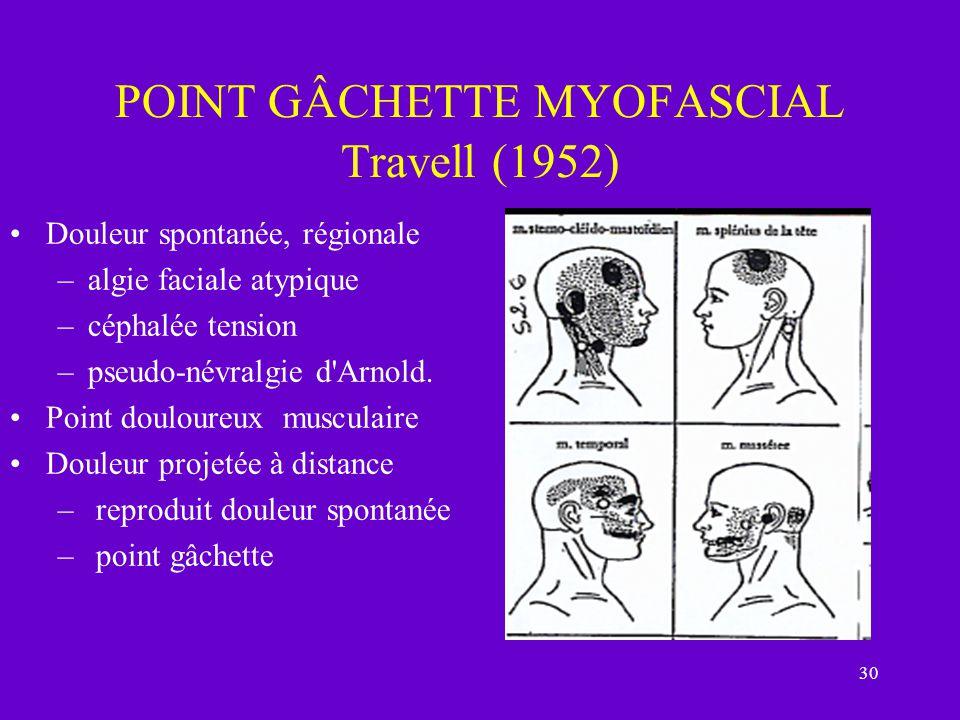 30 POINT GÂCHETTE MYOFASCIAL Travell (1952) Douleur spontanée, régionale –algie faciale atypique –céphalée tension –pseudo-névralgie d'Arnold. Point d