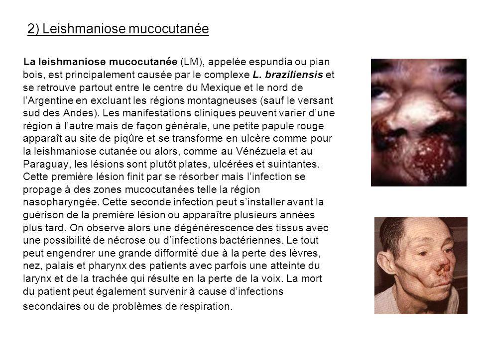 2) Leishmaniose mucocutanée La leishmaniose mucocutanée (LM), appelée espundia ou pian bois, est principalement causée par le complexe L. braziliensis