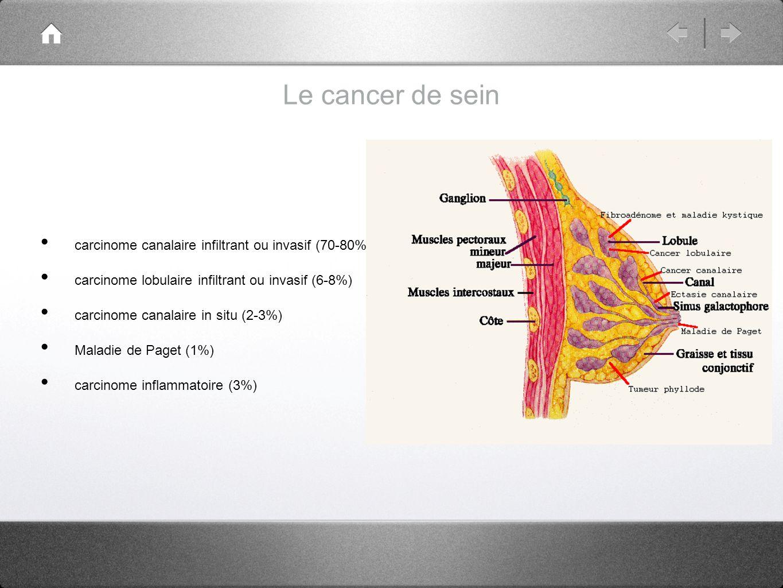 Bilan dextension les sites métastatiques de prédilection du cancer de sein sont les os, les poumons, le foie et le cerveau.