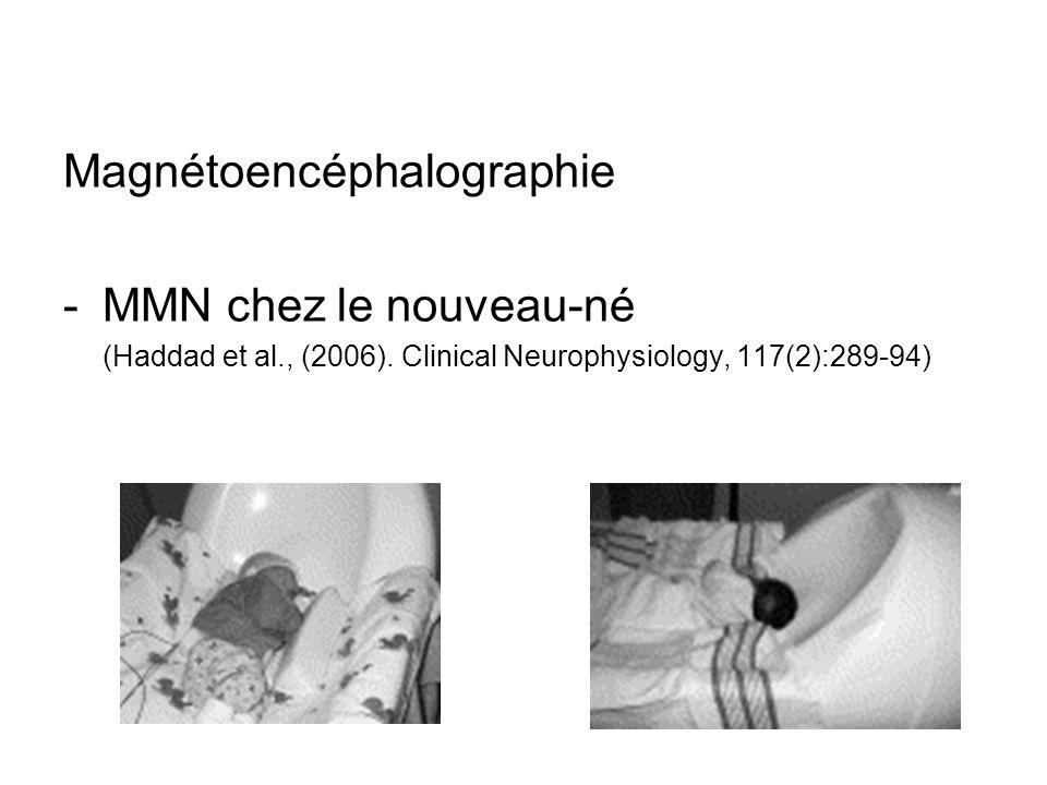 Magnétoencéphalographie -MMN chez le nouveau-né (Haddad et al., (2006). Clinical Neurophysiology, 117(2):289-94)