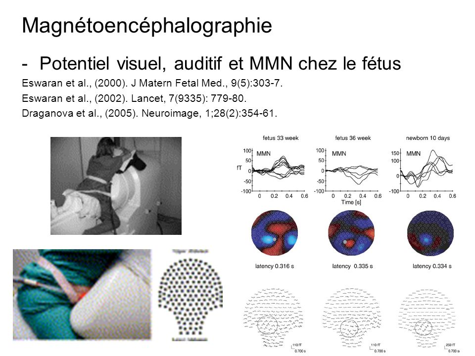 Magnétoencéphalographie -Potentiel visuel, auditif et MMN chez le fétus Eswaran et al., (2000). J Matern Fetal Med., 9(5):303-7. Eswaran et al., (2002