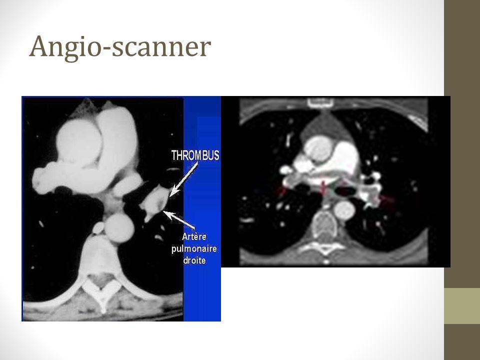 Angio-scanner