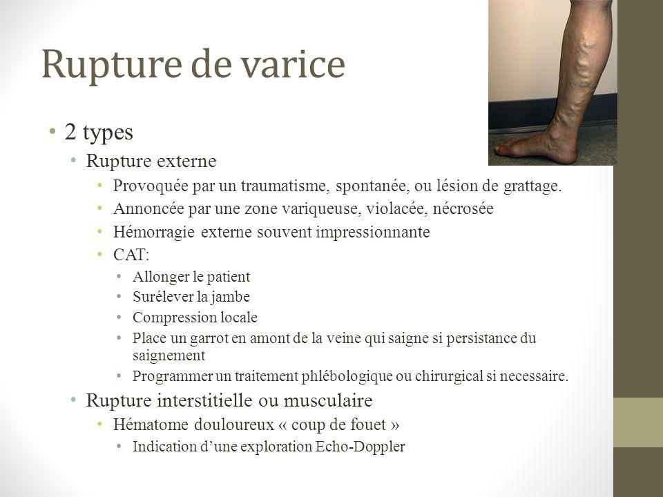 Rupture de varice 2 types Rupture externe Provoquée par un traumatisme, spontanée, ou lésion de grattage. Annoncée par une zone variqueuse, violacée,