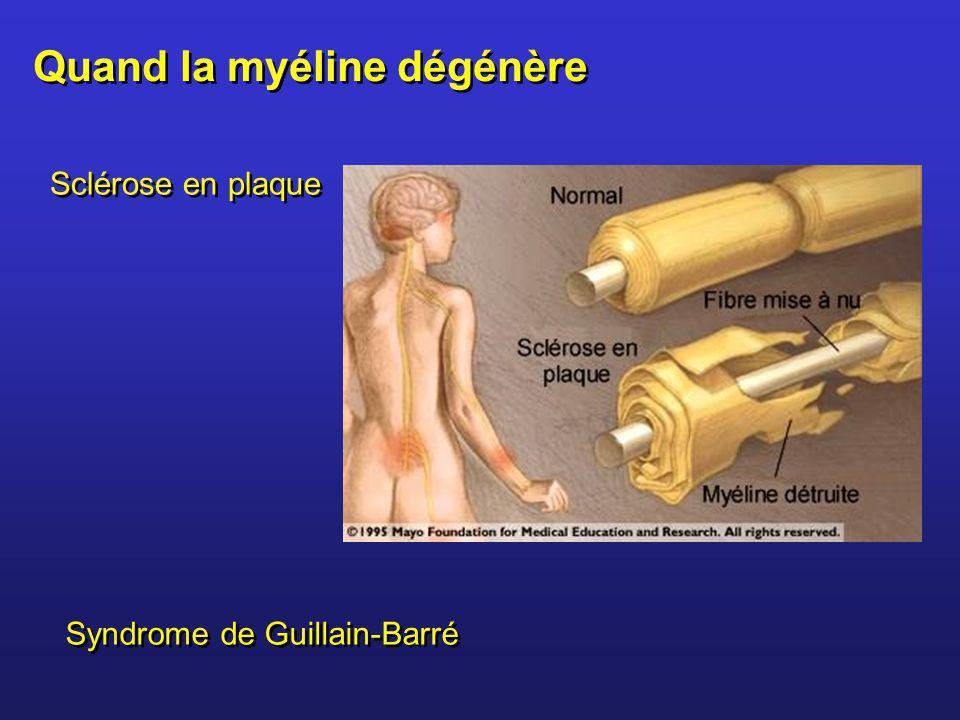 Quand la myéline dégénère Sclérose en plaque Syndrome de Guillain-Barré
