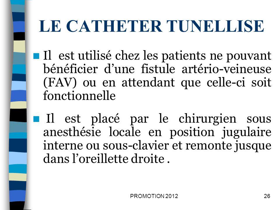 LE CATHETER TUNELLISE Il est utilisé chez les patients ne pouvant bénéficier dune fistule artério-veineuse (FAV) ou en attendant que celle-ci soit fon