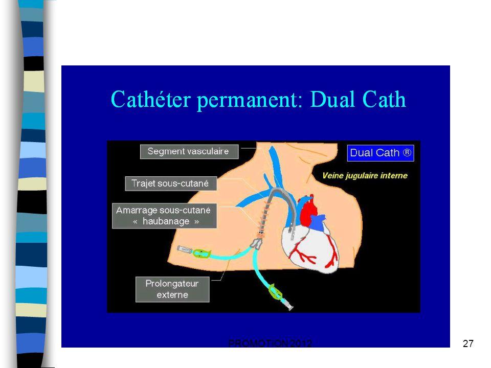 LA FISTULE ARTERIO- VEINEUSE Cest une anastomose entre une artère et une veine.
