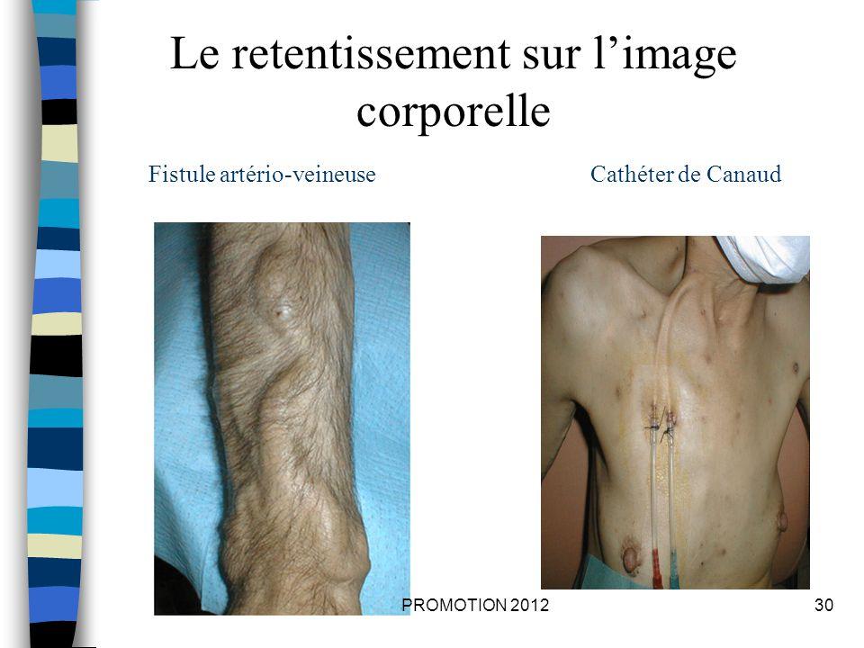 Cathéter de CanaudFistule artério-veineuse Le retentissement sur limage corporelle 30PROMOTION 2012