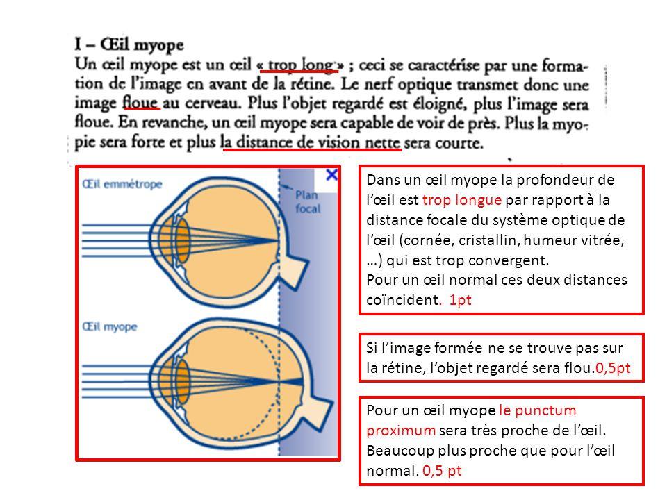 Dans un œil myope la profondeur de lœil est trop longue par rapport à la distance focale du système optique de lœil (cornée, cristallin, humeur vitrée