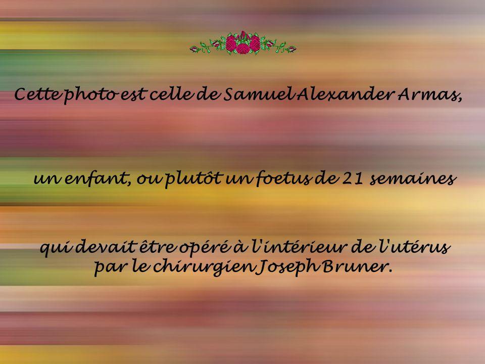 Texte: du Web Musique: FurElse-Zamfir Réalisation : Laurent