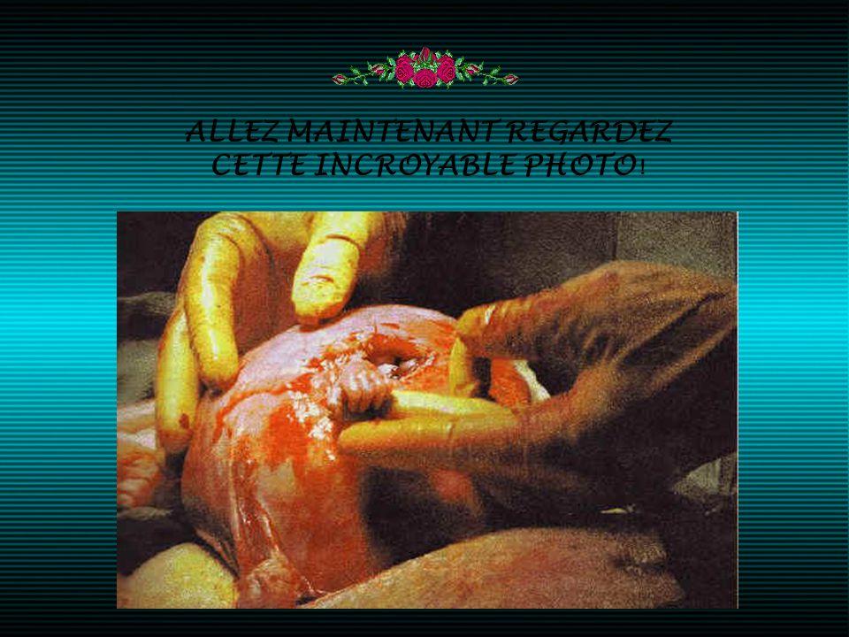 et le texte disait : «La petite main de Samuel Alexander Armas est apparue hors de l'utérus de sa mère pour agripper le doigt du Docteur Bruner comme