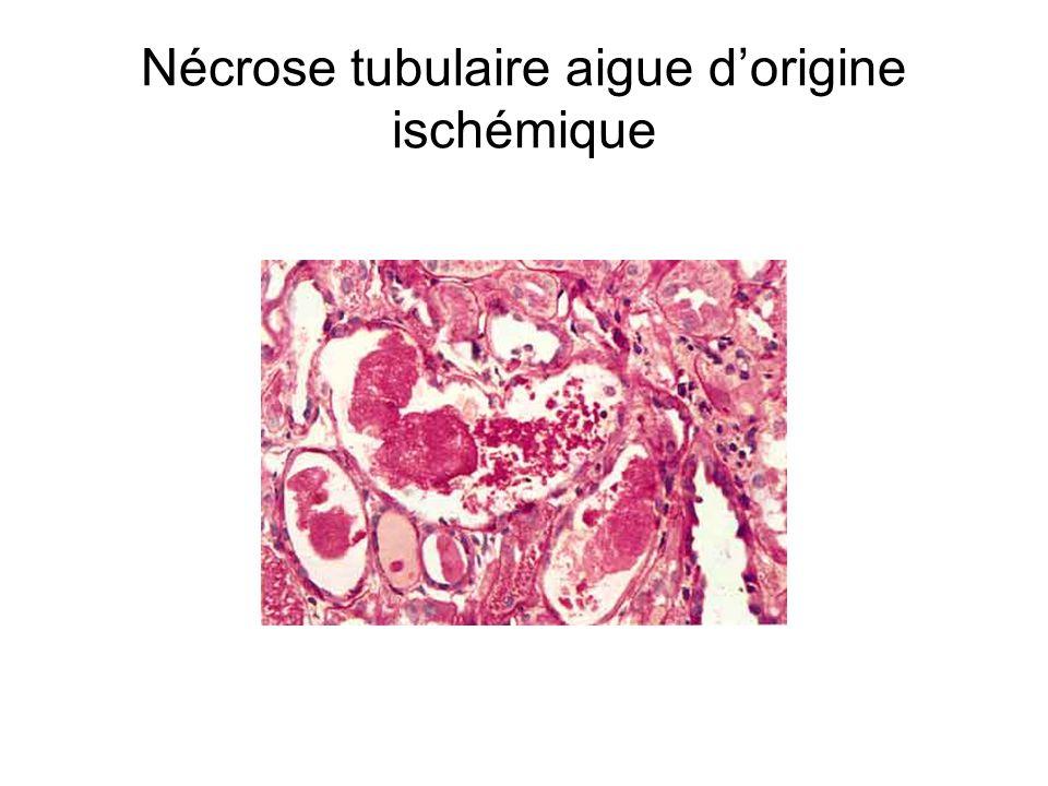 Nécrose tubulaire aigue dorigine ischémique