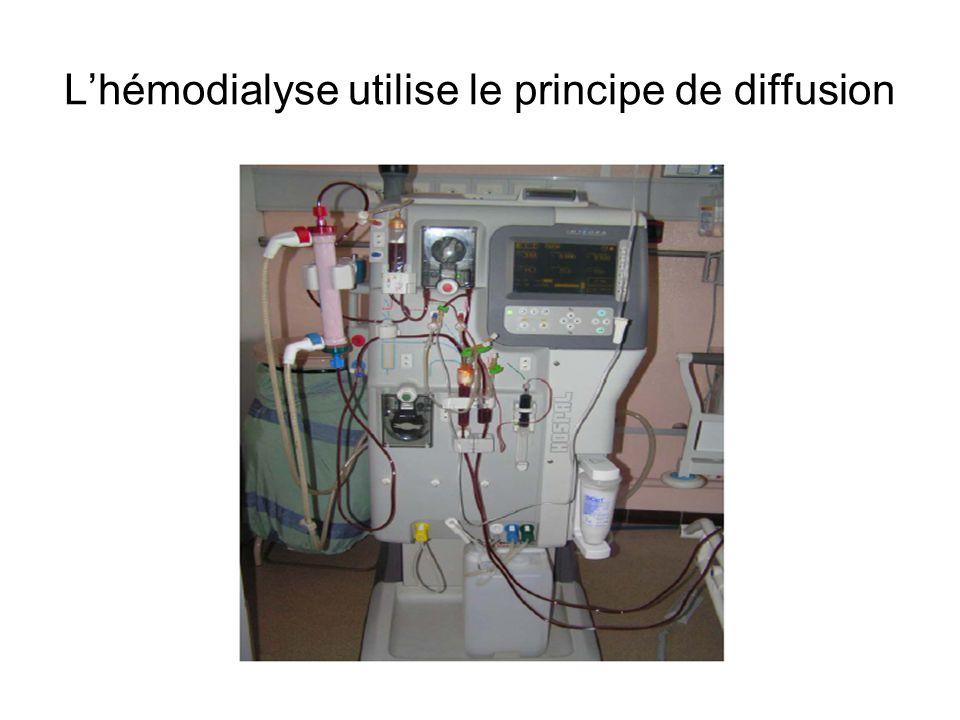 Lhémodialyse utilise le principe de diffusion