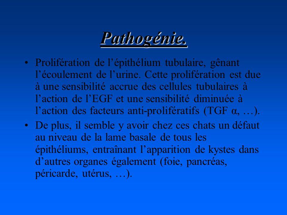 Pathogénie.Prolifération de lépithélium tubulaire, gênant lécoulement de lurine.