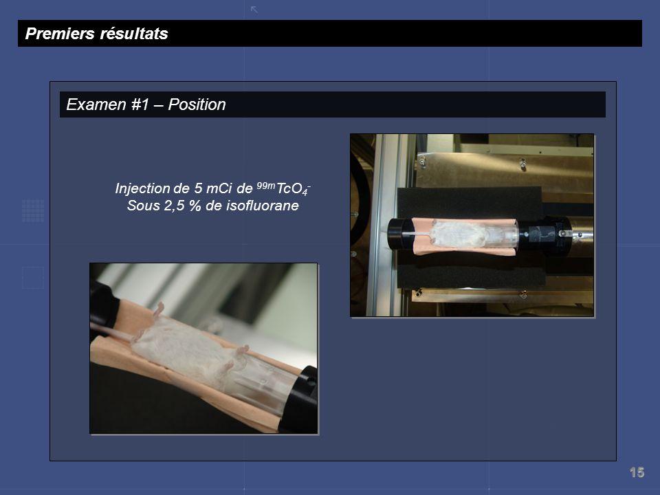 15 Premiers résultats Examen #1 – Position Injection de 5 mCi de 99m TcO 4 - Sous 2,5 % de isofluorane