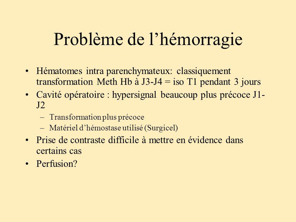 Problème de lhémorragie Hématomes intra parenchymateux: classiquement transformation Meth Hb à J3-J4 = iso T1 pendant 3 jours Cavité opératoire : hype