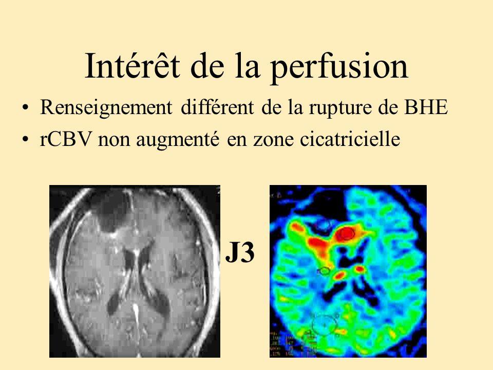 Intérêt de la perfusion Renseignement différent de la rupture de BHE rCBV non augmenté en zone cicatricielle J3