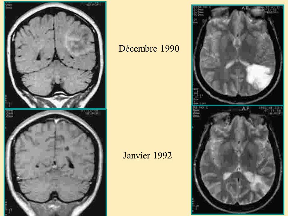 Décembre 1990 Janvier 1992