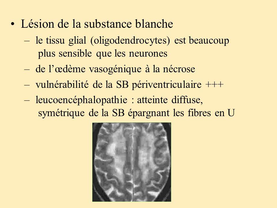 Lésion de la substance blanche – le tissu glial (oligodendrocytes) est beaucoup plus sensible que les neurones – de lœdème vasogénique à la nécrose –