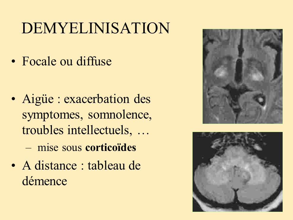 DEMYELINISATION Focale ou diffuse Aigüe : exacerbation des symptomes, somnolence, troubles intellectuels, … – mise sous corticoïdes A distance : table