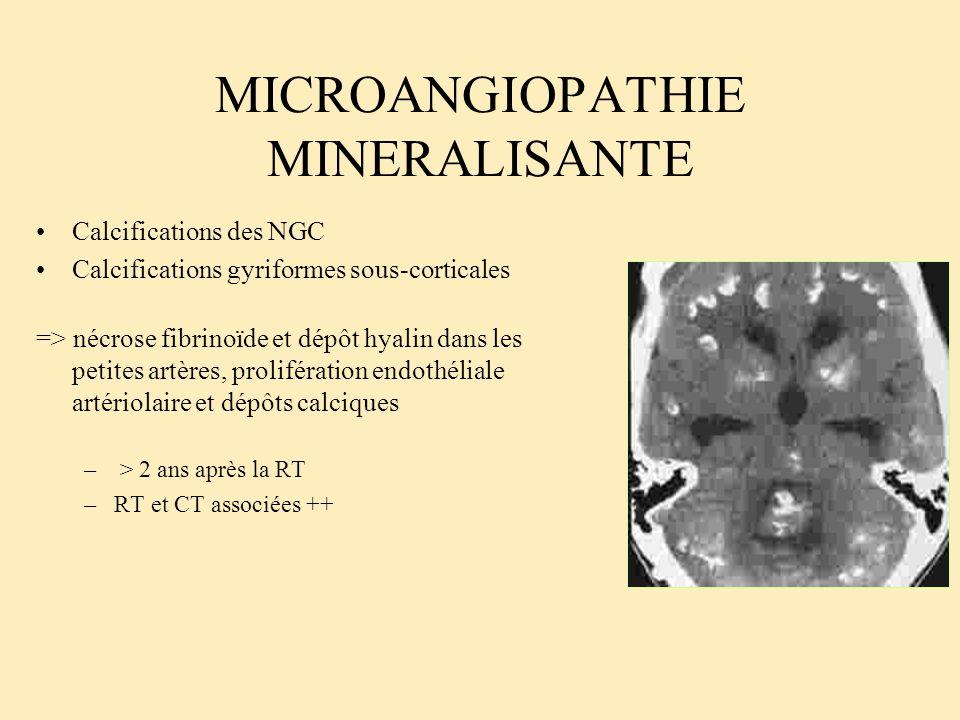 MICROANGIOPATHIE MINERALISANTE Calcifications des NGC Calcifications gyriformes sous-corticales => nécrose fibrinoïde et dépôt hyalin dans les petites