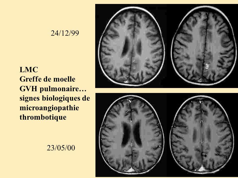 LMC Greffe de moelle GVH pulmonaire… signes biologiques de microangiopathie thrombotique 24/12/99 23/05/00