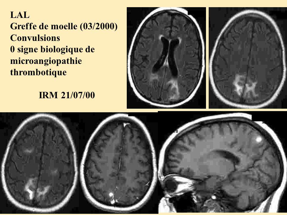 LAL Greffe de moelle (03/2000) Convulsions 0 signe biologique de microangiopathie thrombotique IRM 21/07/00