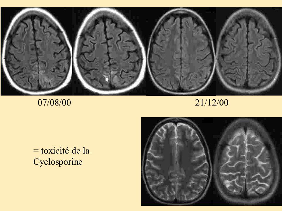 = toxicité de la Cyclosporine 07/08/0021/12/00