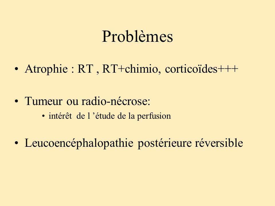 Problèmes Atrophie : RT, RT+chimio, corticoïdes+++ Tumeur ou radio-nécrose: intérêt de l étude de la perfusion Leucoencéphalopathie postérieure révers