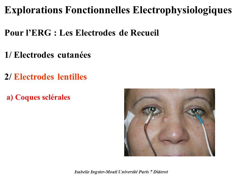 Isabelle Ingster-Moati Université Paris 7 Diderot Explorations Fonctionnelles Electrophysiologiques Pour lERG : Les Electrodes de Recueil 1/ Electrode