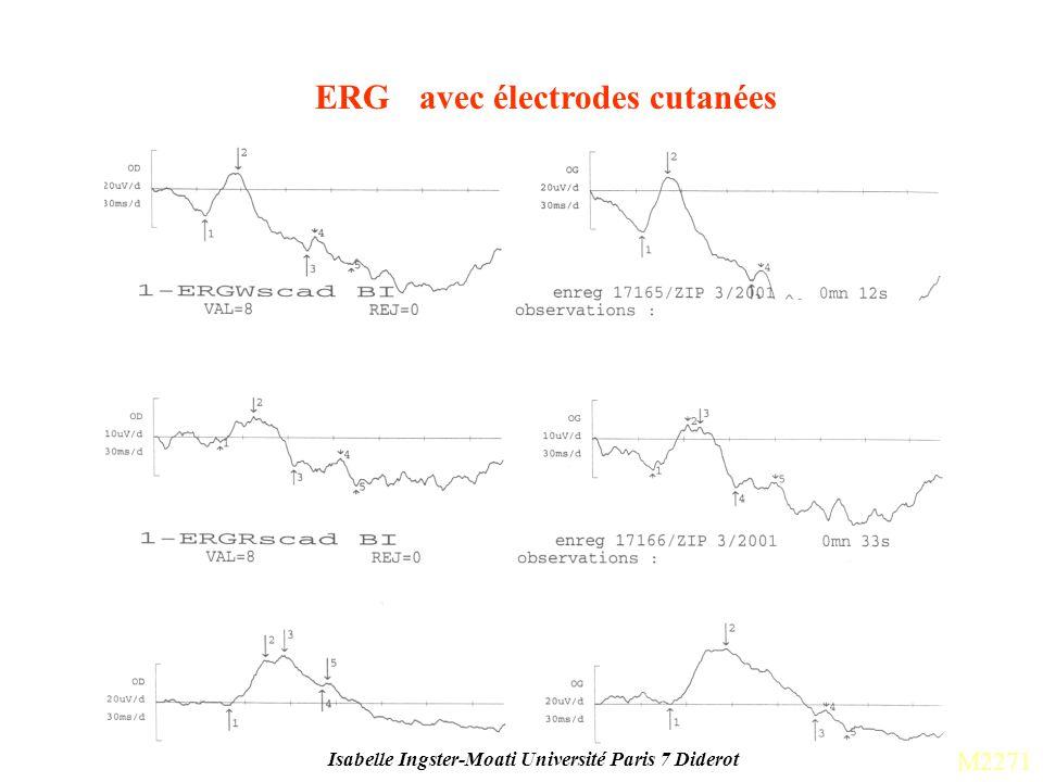 Isabelle Ingster-Moati Université Paris 7 Diderot ERG avec électrodes cutanées M2271