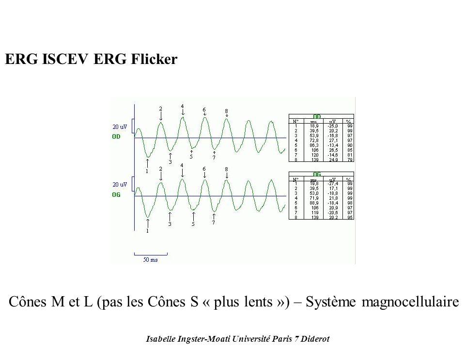 Isabelle Ingster-Moati Université Paris 7 Diderot ERG ISCEV ERG Flicker Cônes M et L (pas les Cônes S « plus lents ») – Système magnocellulaire