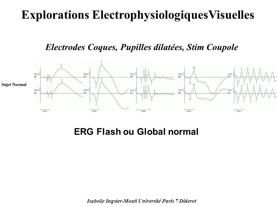 Isabelle Ingster-Moati Université Paris 7 Diderot Explorations ElectrophysiologiquesVisuelles Electrodes Coques, Pupilles dilatées, Stim Coupole ERG F